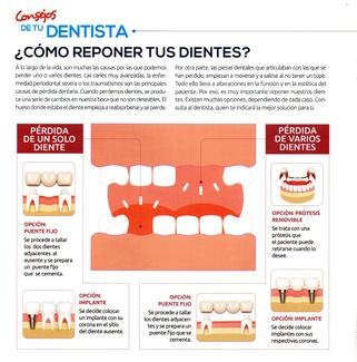 Cómo reponer los dientes que te faltan.