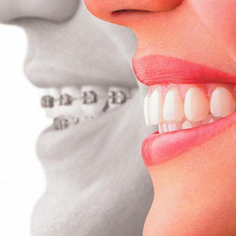Ortodoncias correctivas: Servicios de Clínica Dental Mataró
