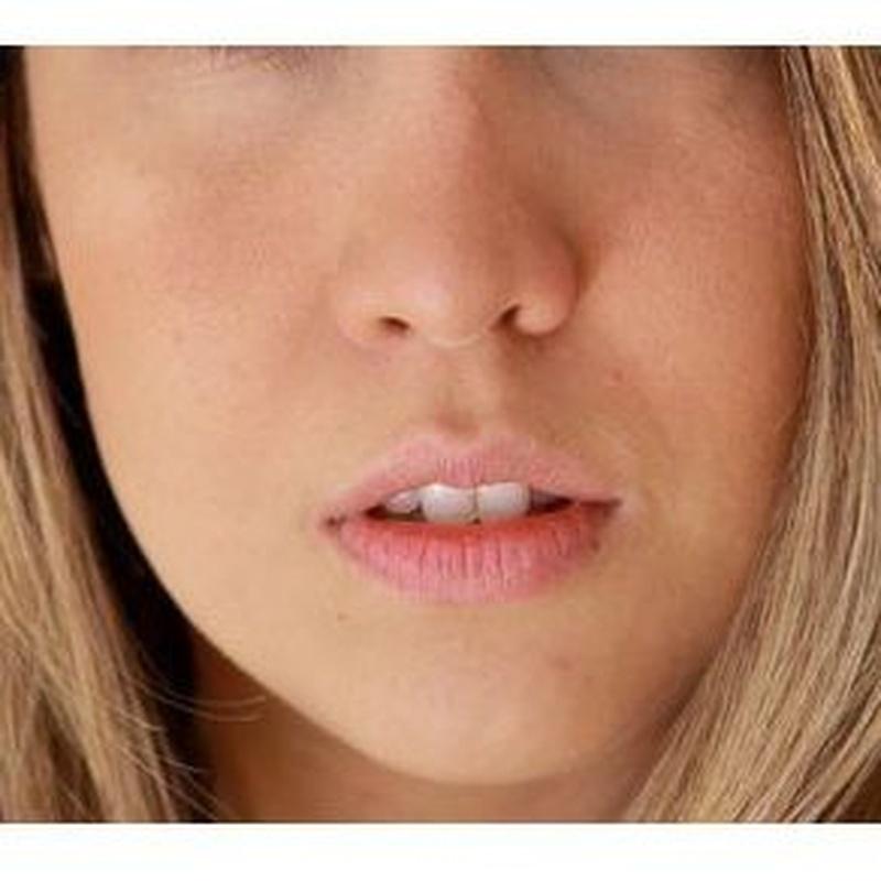 Manchas de la piel: Tratamientos de Palma Estetic Dr. Antonio Jiménez Martorell