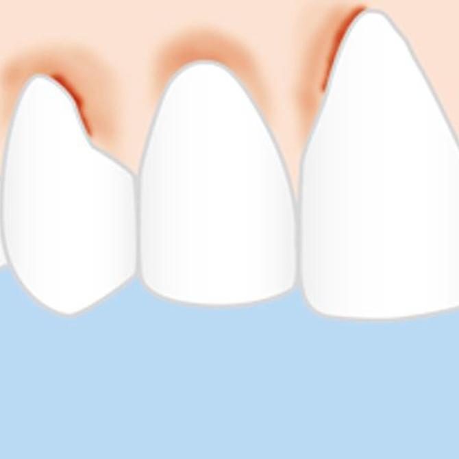 Diagnóstico y tratamiento de la gingivitis