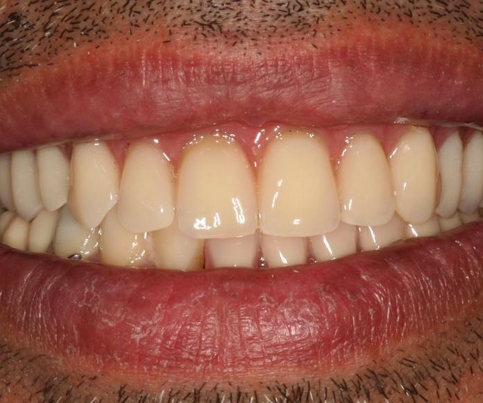 Plan solidario: Tratamientos  de Centro Odontológico La Eliana