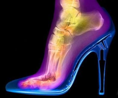 Evidencia de cómo sufre el pie utilizando tacones altos