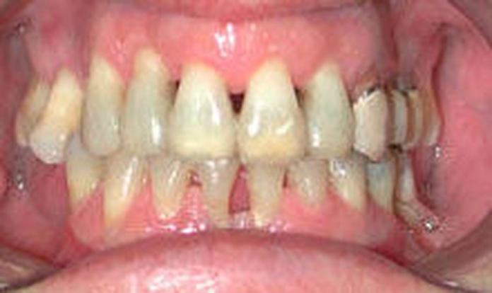 Ortodoncia y periodoncia en Getxo