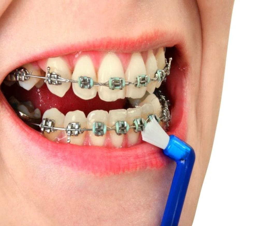 La higiene bucal en usuarios con aparato de ortodoncia