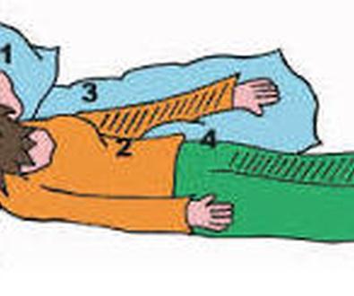 Hemiplejia, tratamiento fisioterápico en Alcorcón