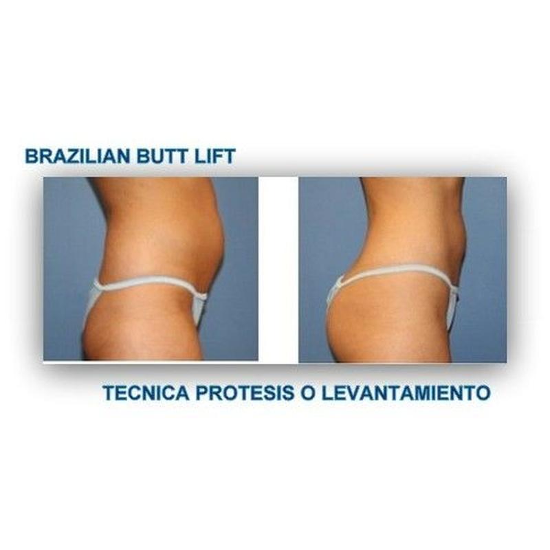 Elevación y relleno de glúteos. Barzilian Butt Lift: Catálogo de Centro Médico  Oftalmológico Milenium