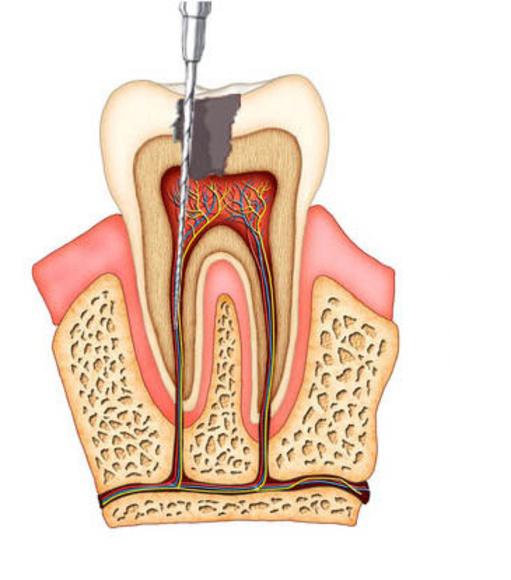 Endodoncia: Productos de Horzkari - Hortz Osasun Klinika