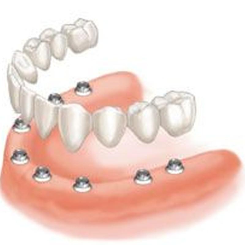 Prótesis Dentales: Servicios de MAG Clínica Estético Dental