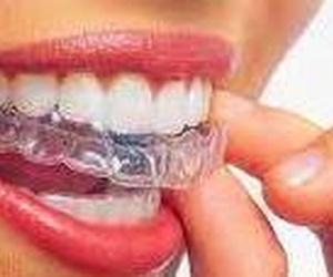 Blanqueamiento dental Chiclana de la Frontera   Clínica Neardental