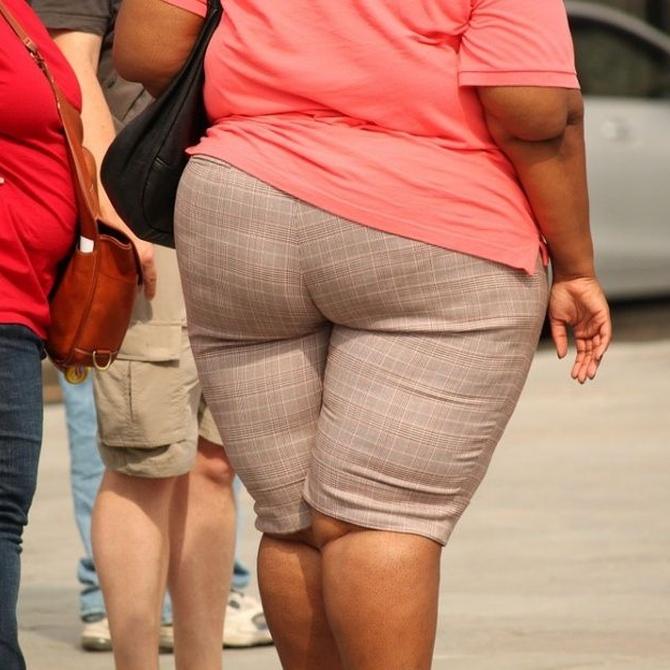 Relación entre los problemas de espalda y el sobrepeso