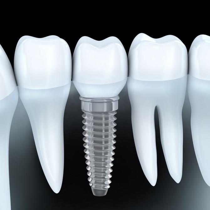 ¿Por qué ponerse implantes dentales?