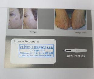 Tratamiento para manchas en la piel