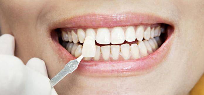 Estética dental : Tratamientos de Clínica dental Dra. Elena Pozo