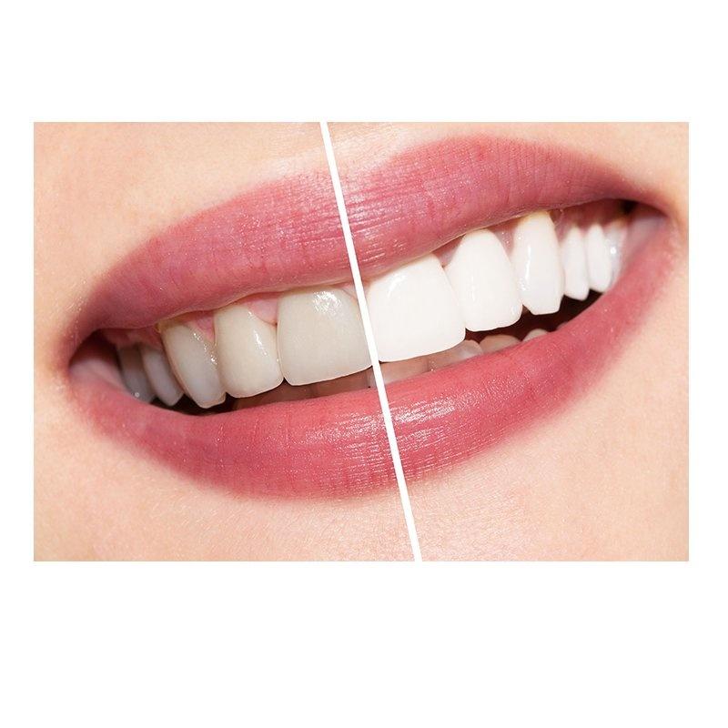 Odontología estética: Servicios de Dental Implantes
