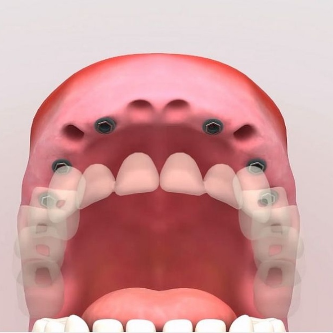 El paso a paso del tratamiento con implantes