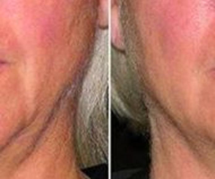 Radiofrecuencia arrugas y flacidez
