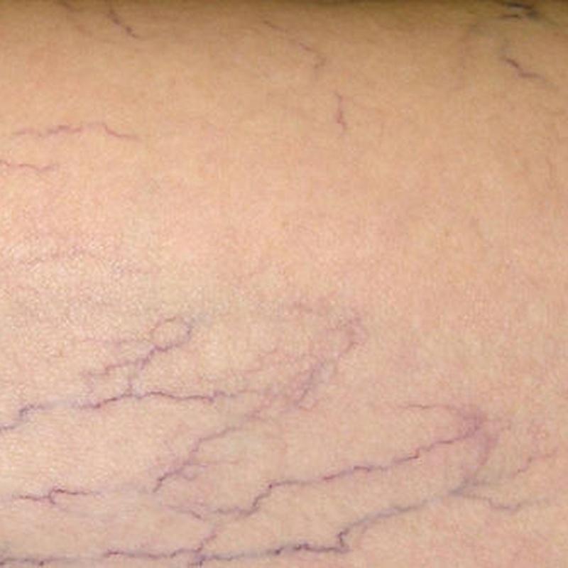 Escleroterapia. Tratamiento de vénulas: Servicios de Clínica Dr. Javier Cerqueiro Cirugía Plástica
