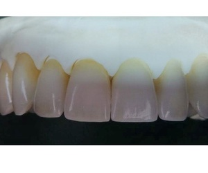 Fabricación de prótesis dentales en Las Palmas