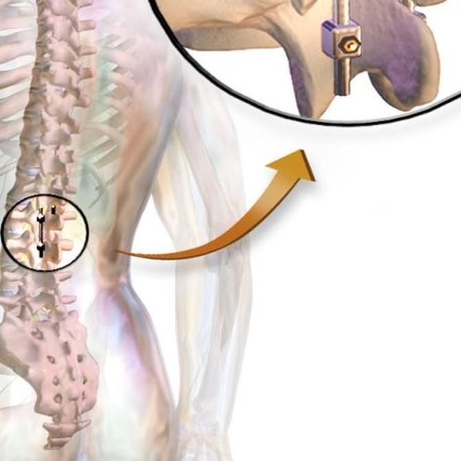 Algunas pruebas para diagnosticar la hernia lumbar