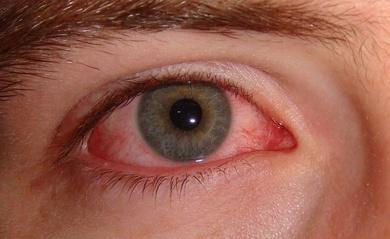 """""""El niño tiene el ojo rojo, ¿es una conjuntivitis?"""