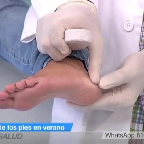 El cuidado de los pies en verano (2ª PARTE)