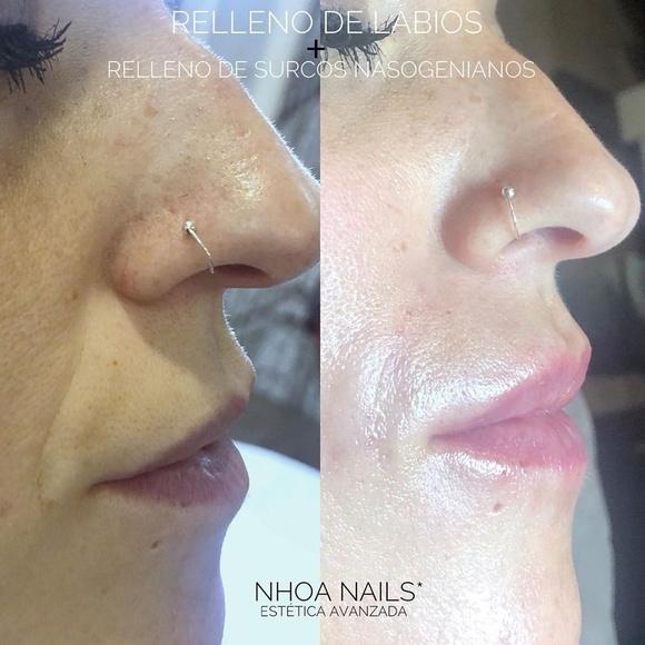 Relleno de labios con ácido hialurónico reticulado: Products de Nhoa Nails*