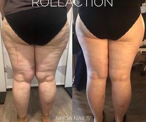 Tratamientos corporales anticelulítico-reafirmante ROLLACTION
