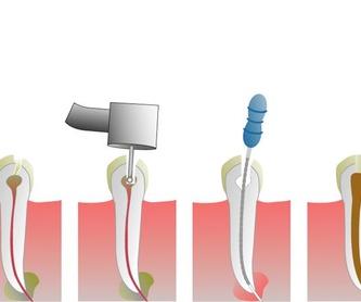 Odontología conservadora: Especialidades de Clínica Dental Virgen de la Victoria. Dr. Leopoldo Hernández