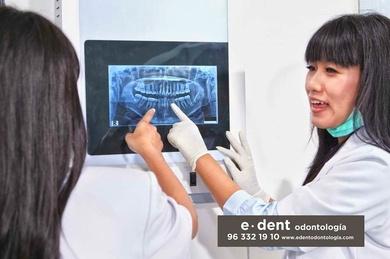 La osteoporosis y otras enfermedades se pueden ver reflejadas en tu boca
