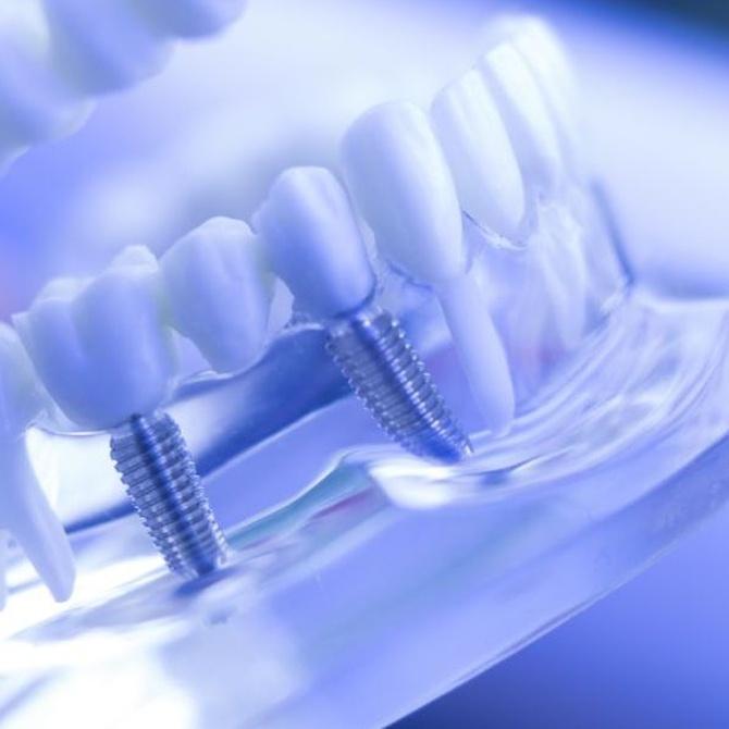 ¿En qué casos recomiendan los expertos realizar implantes dentales?