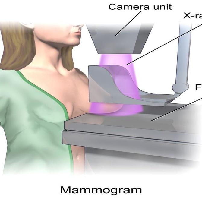 Los orígenes de las mamografías