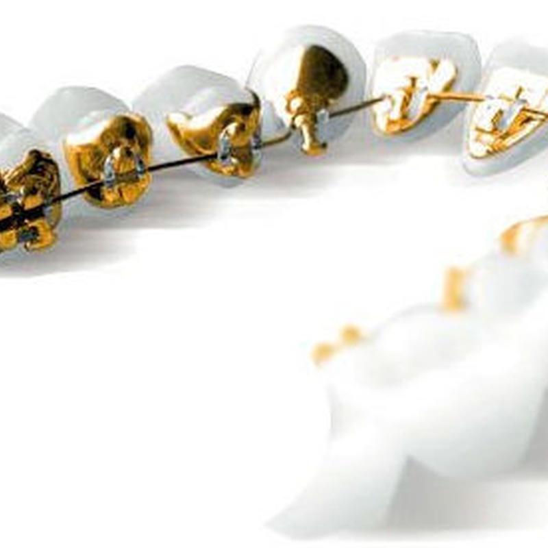 ortodoncistas san sebastian