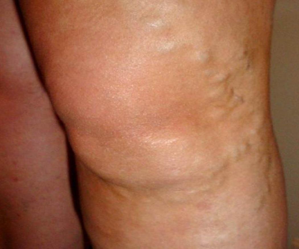 La esclerosis de varices