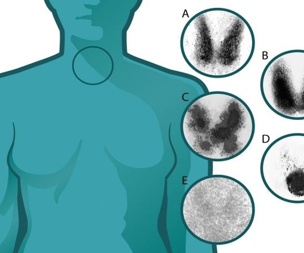 Diferencias entre hipertiroidismo e hipotiroidismo