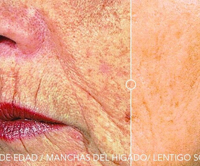 Eliminación manchas de edad en la piel Bethsabee Belleza Avanzada