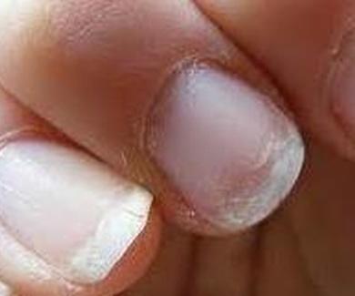 Como evitar que las uñas se quiebren.
