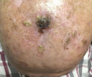 Cánceres no melanoma