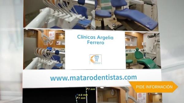 Ortodoncia Damon en Mataró - Clínica Argelia Ferrero