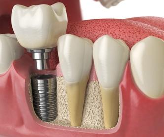 Implantes dentales: Servicios de Humanes Dental