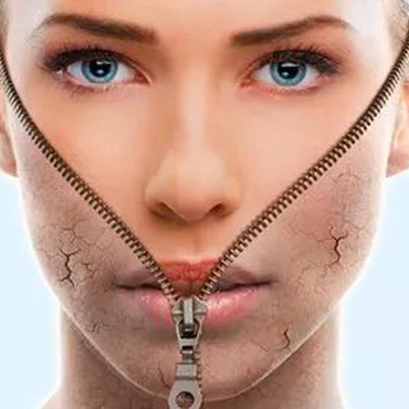 Ferulac Peel: Tratamientos de Medicina Estética Profesional