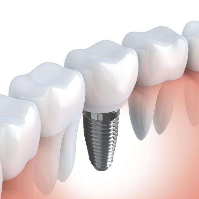 ¿Cómo se sujetan los implantes dentales?