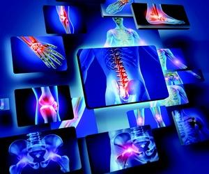 Reumatología. Dr. Daniel Batista.