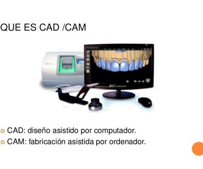 Tecnología CAD-CAM