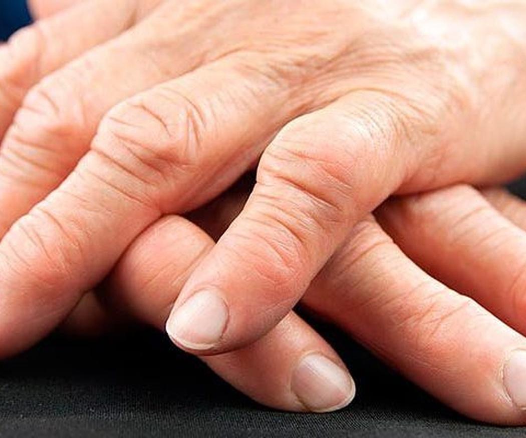Qué se entiende por reumatismo