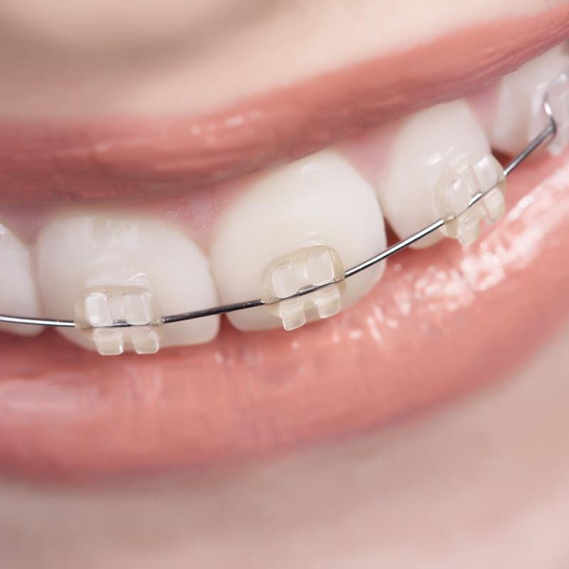 Ortodoncia estética: Tratamientos de Centro Médico Dental Capitol
