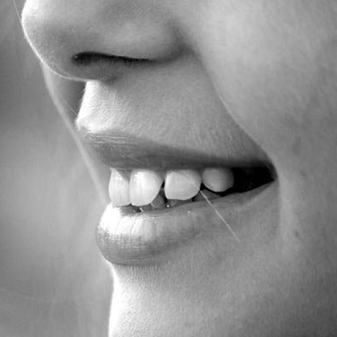 ¿Qué edad es la más indicada para colocar una ortodoncia?