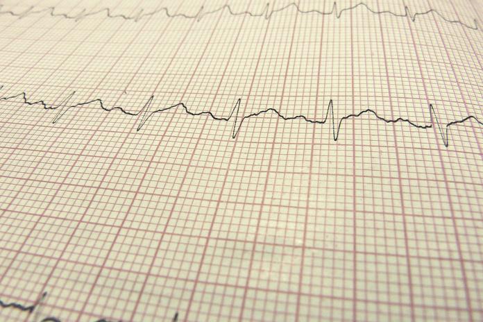 Electrocardiograma: Tratamientos de Centro Veterinario Ejido Sur