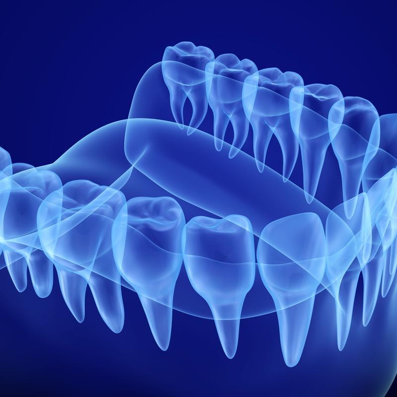 Radiología digital: Tratamientos de Gavà Mar Dental
