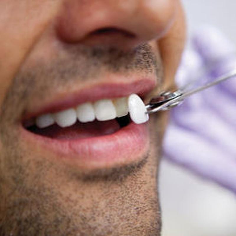 Carillas estéticas: Catálogo de Centro de Salud Dental FamilDent
