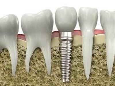 Todos los productos y servicios de Dentistas: Aiara Centro Dental